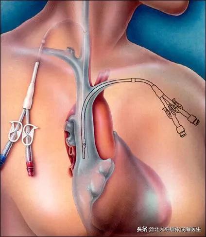 【中心静脉置管的注意事项⚠️】    现 - 第1张  | 网络大咖