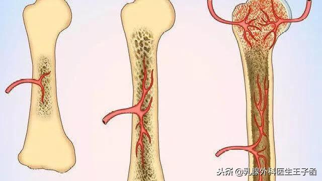 【化疗引起的白细胞低、骨髓抑制怎么办?】 - 第1张  | 网络大咖
