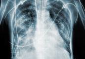 医生提醒:体检查出肺结节和肺阴影先别慌!按照这样做平安度过