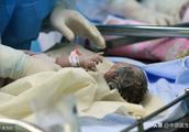 产前2天查出异常出生三四天上手术台:如果查出的早会选流产吗?